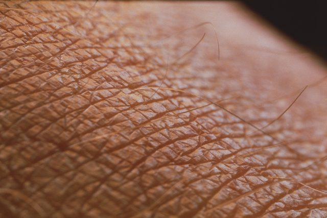 Lidská kůže