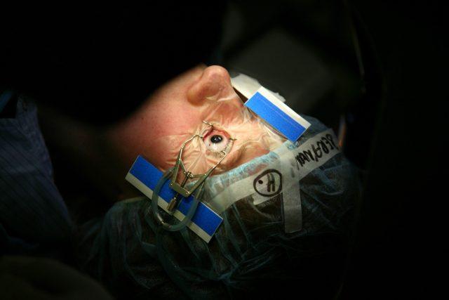 Operace očí (ilustrační foto)