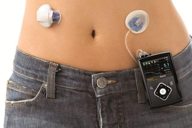 Nový typ inzulínové pumpy