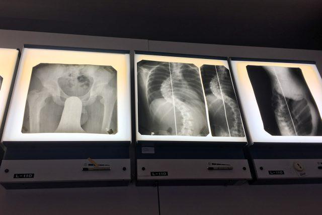 Staré rentgenové snímky z Hamzovy léčebny