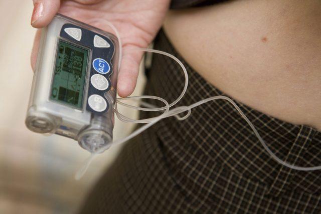Na léčbu diabetes mellitus se už běžně používají inzulínové pumpy