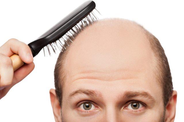 Alopecie, tedy plešatění, se týká především mužů