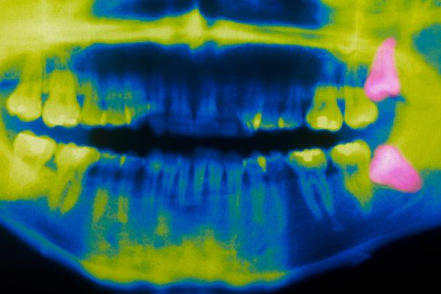 Někteří lékaři radí zuby moudrosti hned vytrhnout   foto: Profimedia